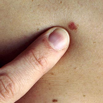 Diagnosing Skin Cancer