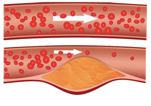 Atherosclerosis – Symptoms, Causes, prevention and Treatment