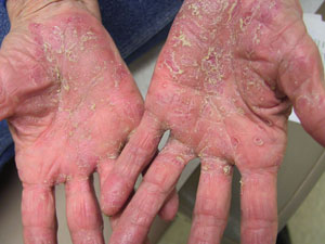 Americans and Psoriasis